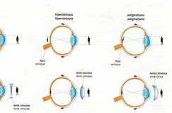 Image result for Astigmatism