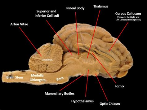 sagittal section of sheep brain the nervous system