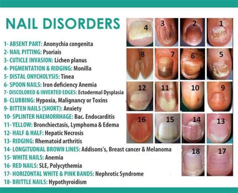 fingernail color fingernail color and clues to your health live happy