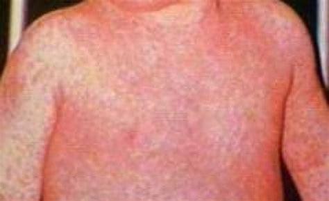 dolore parte destra testa auto massaggio rilassante per collo e spalle