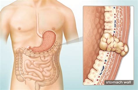 press gist gastrointestinal stromal tumor gist what does this