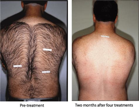 peli sul sedere pulido electrolysis and laser hair removal