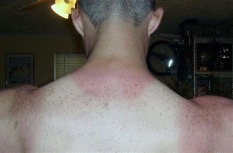 imagenes de manchas rojas en los brazos melanoma cuidado con las manchas en la piel eroski consumer