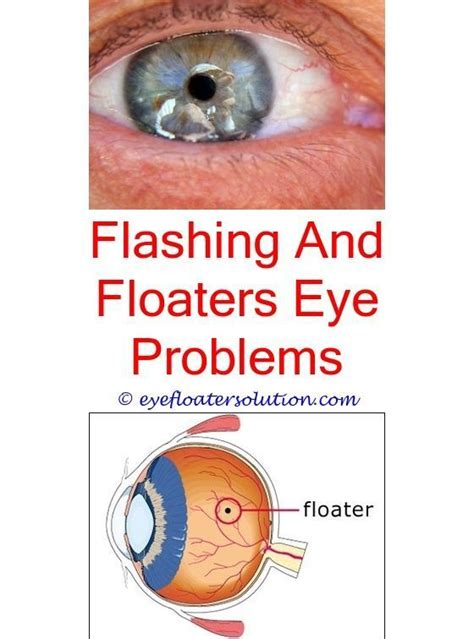 flashing silver lights in eyes can eye floaters cause flashes of light