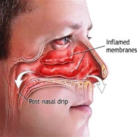 home remedies for nasal congestion nasal congestion sick ugh nasal