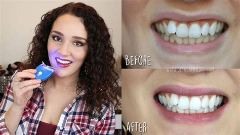 brightwhite smile teeth whitening light best affordable teeth whitening kit smile bright review