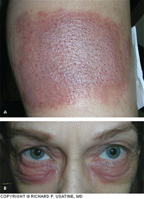 Diagnosis And Management Of Contact Dermatitis American