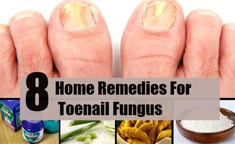 fungal toenail pictures awesome nail