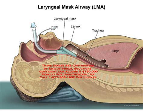 intubation diagram amicus illustration of amicus larynx laryngeal