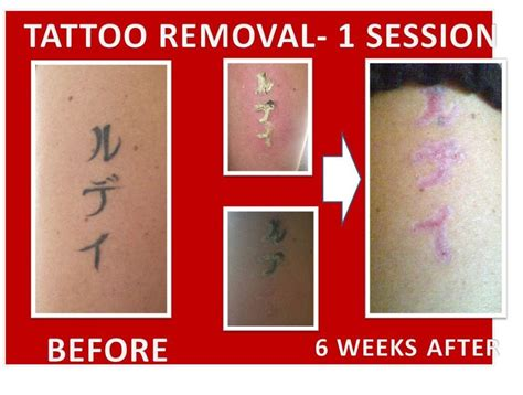 tattoo removal south africa lea gauteng south africa