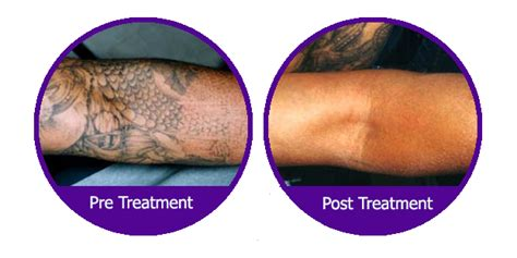 tattoo removal chester laser removal laser me chester