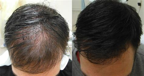 pics of scalp micropigmentation on people with long hair how scalp micropigmentation can work with longer hair