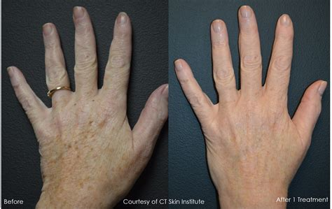 age spots or brown spots on hands using pico genesis