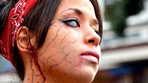 Imagenes De Personas Que Extrañas | 8 personas que fueron alcanzadas por un rayo youtube