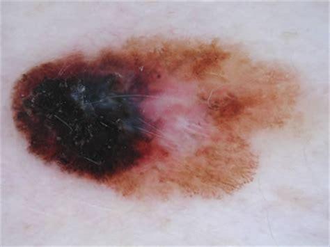 melanoma image library primary care dermatology society uk