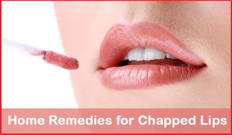 home remedies for chapped 10 methods
