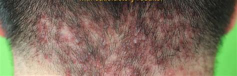 scalp ingrown hair bumps after haircut bumps on back of head after haircut www pixshark com