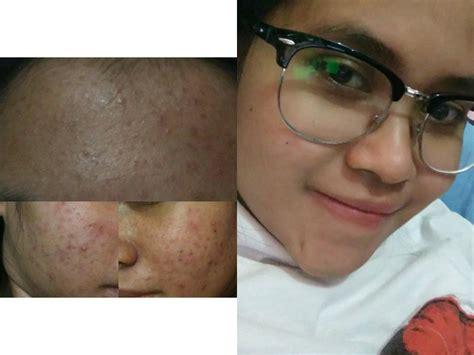 Krim Pemutih Dokter Kun diary lilik triwahyuningsih my acne story review dr