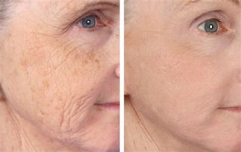 the award winning picosure for the treatment of wrinkles
