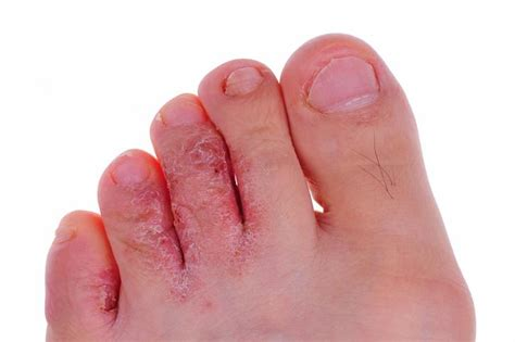 athlete s foot symptoms causes and treatments