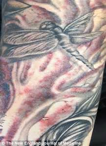 tattoo infection staph tattoo staph infection treatment image search results