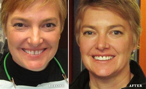 Opencare Dentist Gift Card - before after clearcorrect austin bluffs