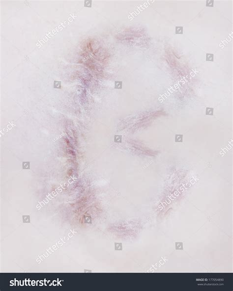 scar on human skin stock photo 97015703 scar letter b on human skin stock photo 177054890