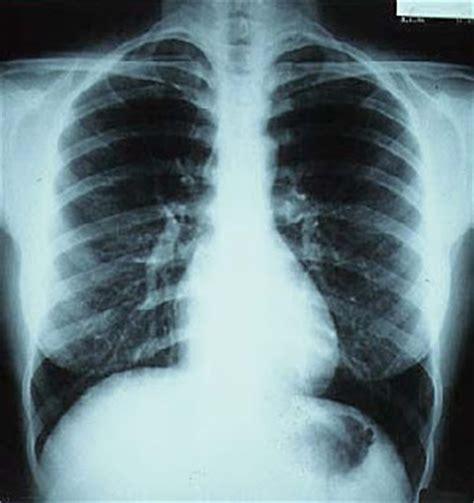 rx horizonte imagenes medicas y odontologicas radiologia