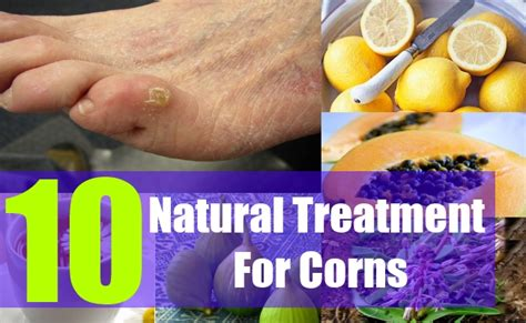 how to treat corns naturally home remedies for corns