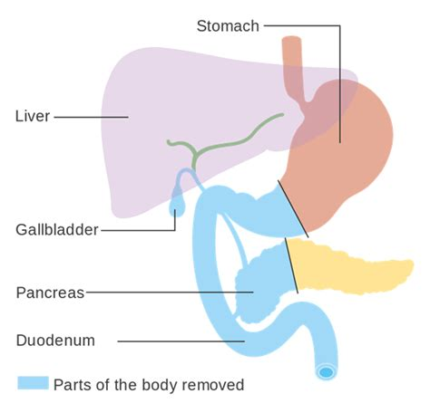 whipple surgery diagram gastrointestinal surgery whipple procedure