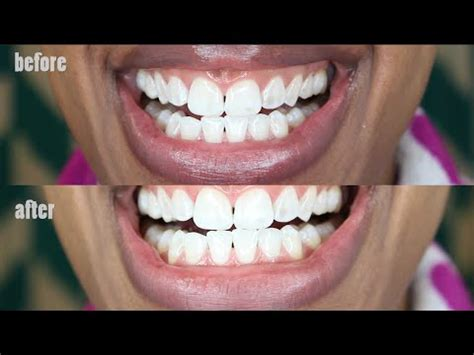 activated charcoal  whiten teeth naturally