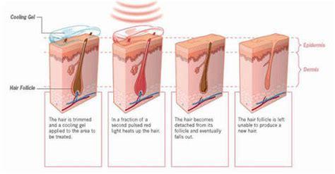 does lightsheer diode laser work lightsheer diode laser 183 lumenis delhi lightsheer diode laser 183 lumenis clinic delhi ncr