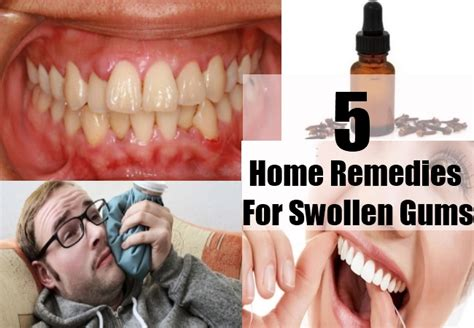 swollen gums home remedies treatments and cure