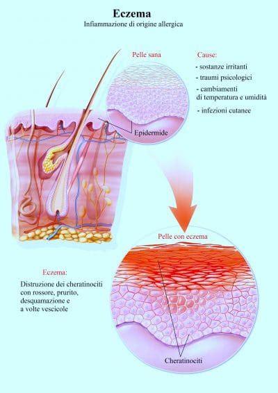 dermatite atopica alimentazione dermatite atopica o eczema nei bambini neonati e adulti