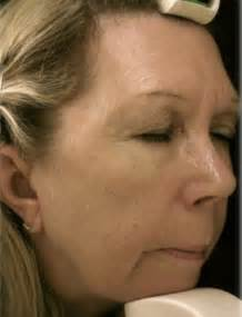 minute facelift facial daily mail
