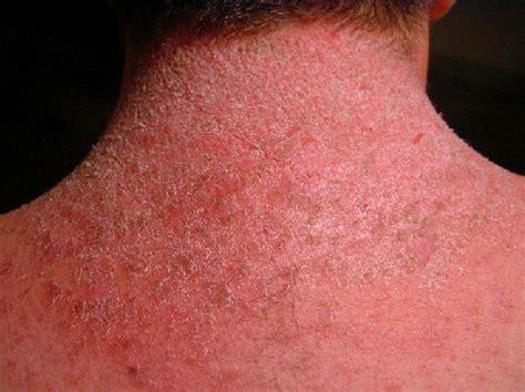 imagenes verrugas vulgares dermatitis atopica takvim kalender hd