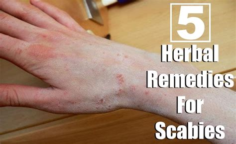 home remedy for scabies on is another