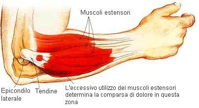 dolore braccio sinistro interno gomito tennista epicondilite laterale