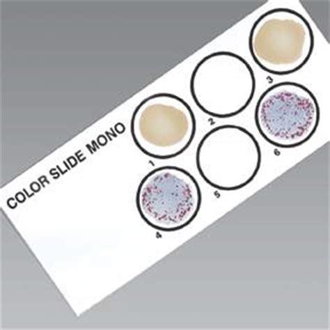 mono test thermo scientific remel color slide ii mononucleosis test