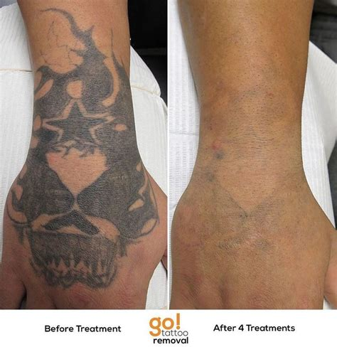 how does skin look after tattoo removal 17 best images about removal in progress on