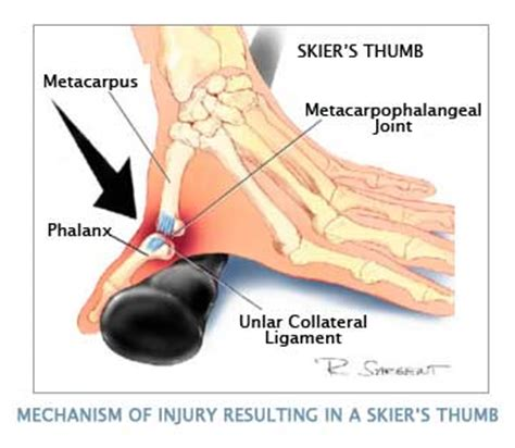 ti hurt mp skier s thumb physiopedia