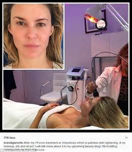 brandi glanville lipstick brandi glanvilleis makeup free after non surgical facelift