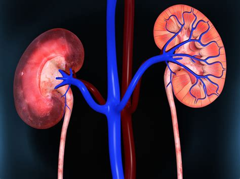 Sle Rationale by Lupus Flares Common During Renal Replacement Therapy