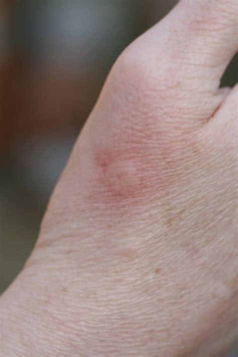 stung by bee bee sting tales from the beehive a beekeepers