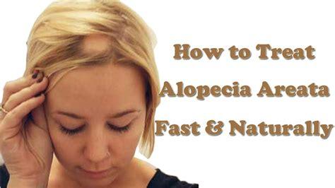 how to cut alepecia areata hair alopecia areata how to treat alopecia areata hair loss