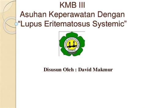 Ppt Lupus Eritematosus Systemic Sle Business Presentation