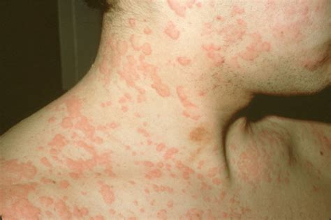 alergias a la piel pictures info urticaria