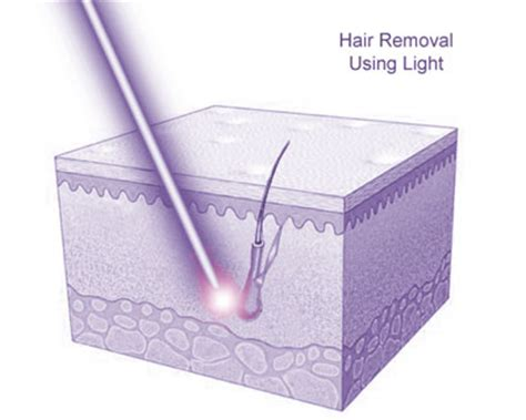 lhe hair removal in portland oregon laser ipl hair removal treatment cost side effects