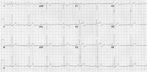 pattern recognition ecg wellens syndrome significance of ecg pattern recognition