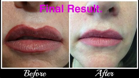 lip liner tattoo infection lip tattoo correction removal youtube